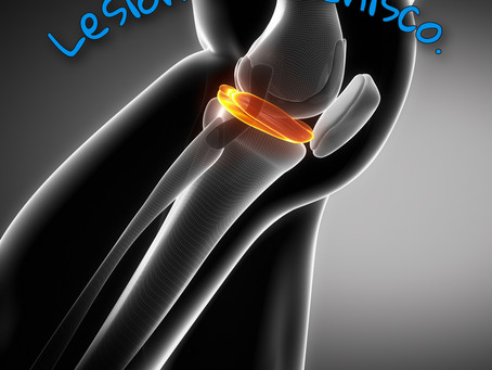 Meniscos. Lesiones y reparaciones artroscópicas