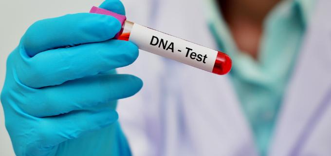 Mão de um profissional da saúde segurando um tubo de laboratório com sangue e etiqueta descrita TESTE DE DNA