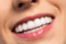 Sorriso - Alinnhador Ortodontico.jpg