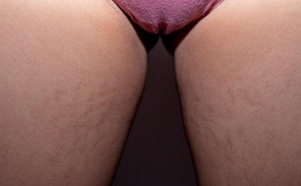 stretchmarks 2.jpg