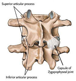 facet_joint_syndrome.jpg