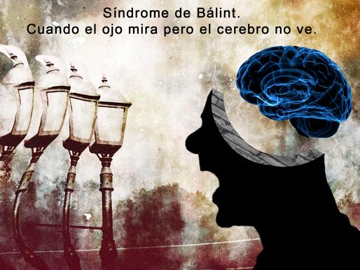 Síndrome de Bálint: cuando el ojo mira pero el cerebro no ve
