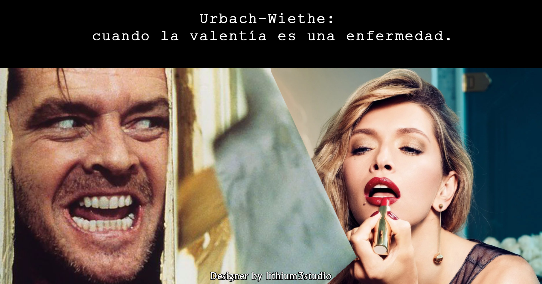 Urbach-Wiethe