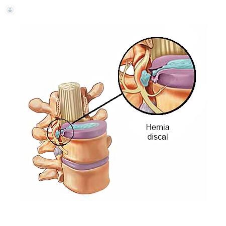 hernia discal, cirugía percutánea,