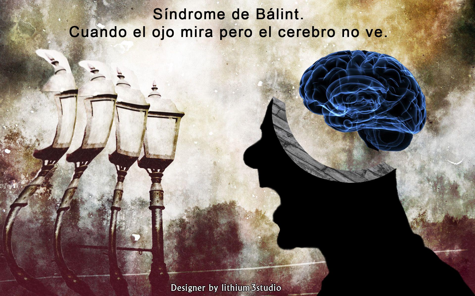 Síndrome de Bálint