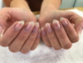 gel manicure removal