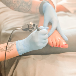 Tattoo Removal at Solei & Co. Sumner