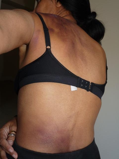 Bruise Make-up