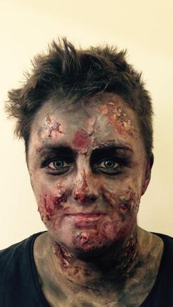 hallowen burns victim