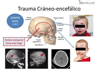 5 pasos ante las caídas de cabeza (Trauma de cráneo)