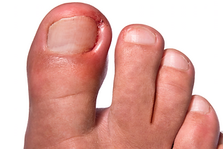 Ingrown-Toenails.png