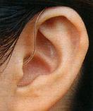 本庄補聴器_レシーバー分離型