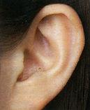 本庄補聴器_耳あな型