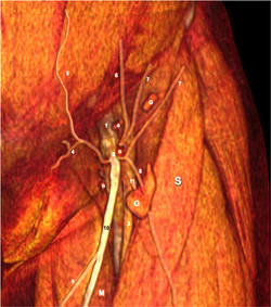 lame lympho ganglion inguinale.jpg