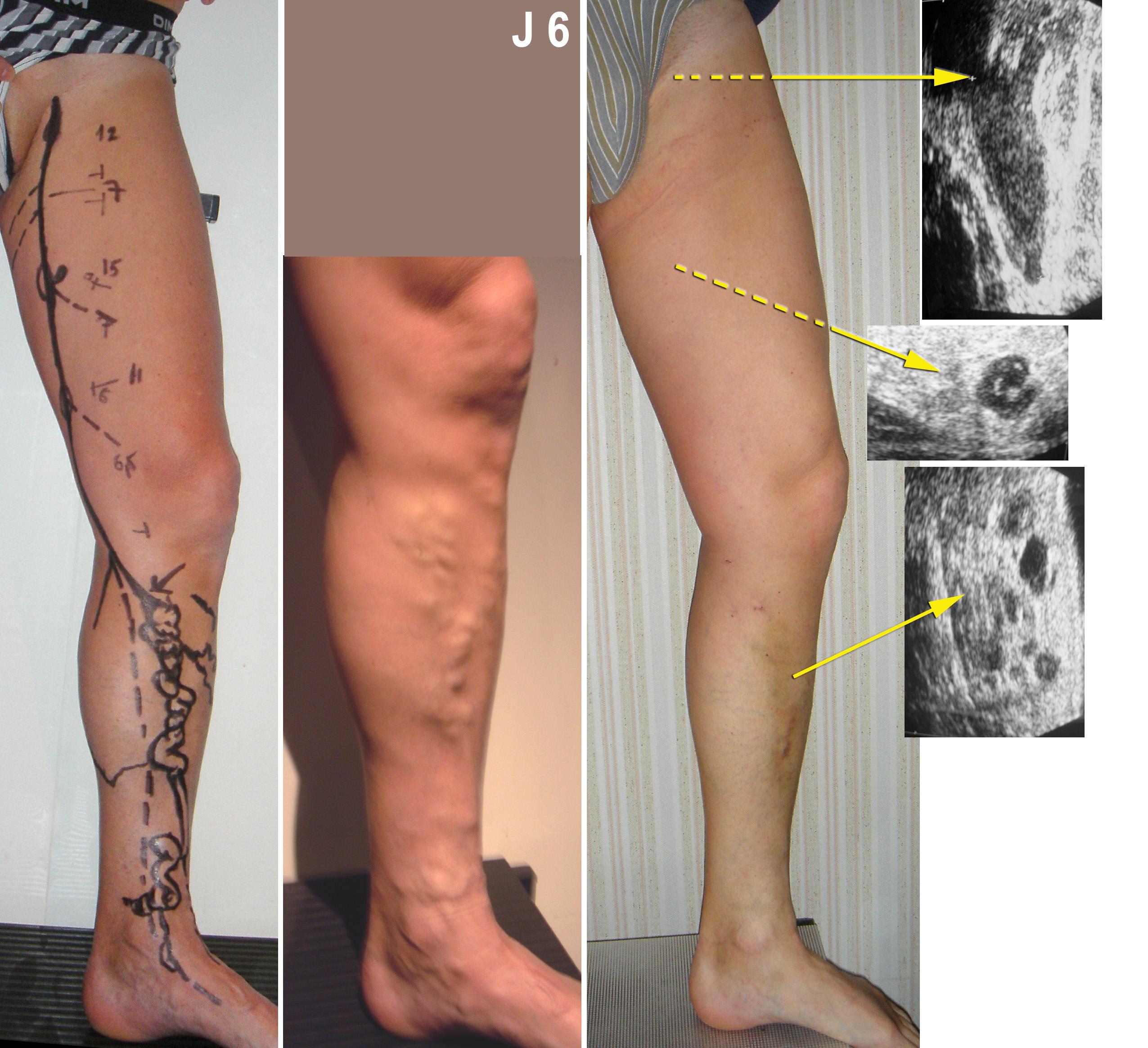 J7 Laser et phlébectomies