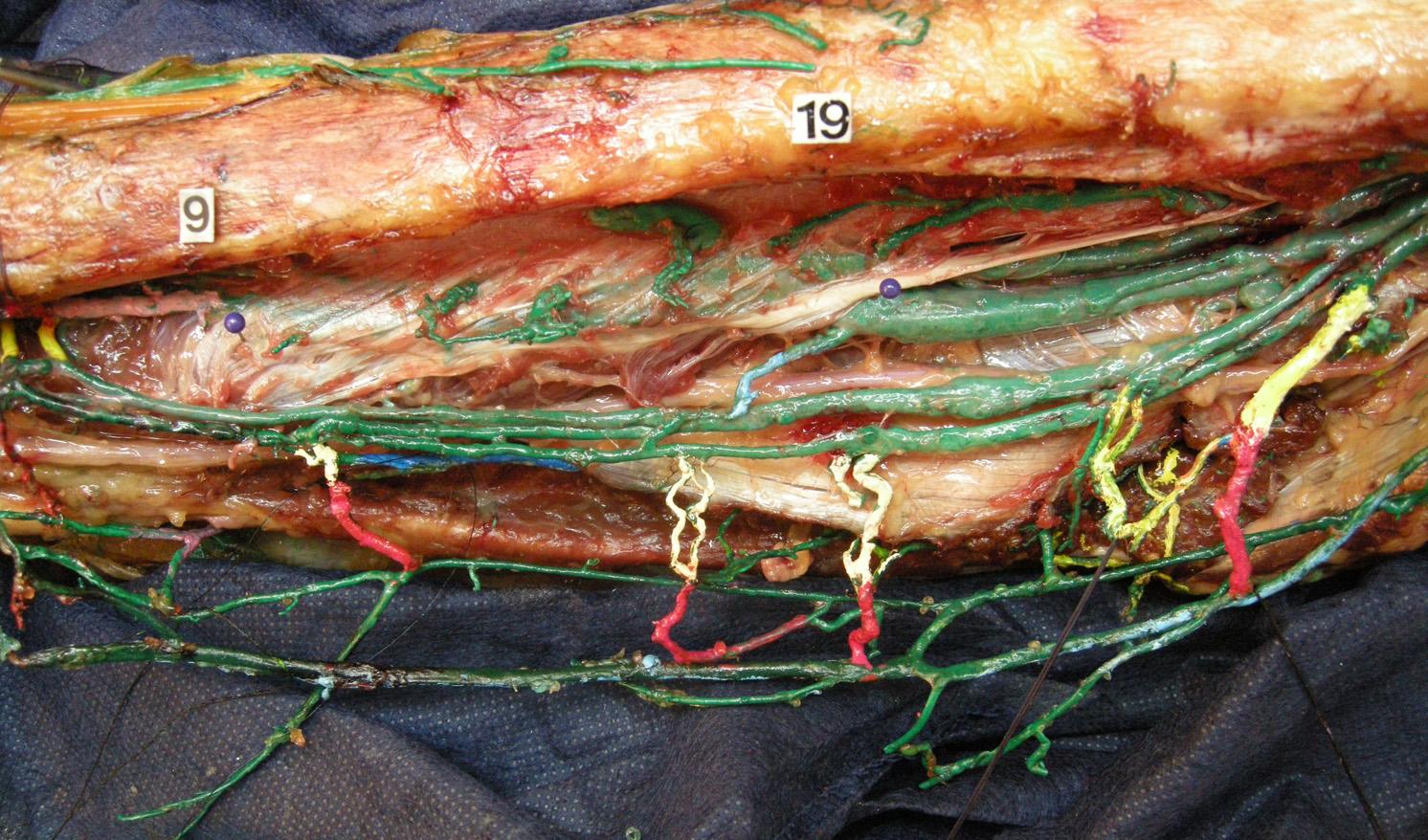 veines fibulaires