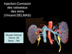 vaisseaux rénaux (corrosion)