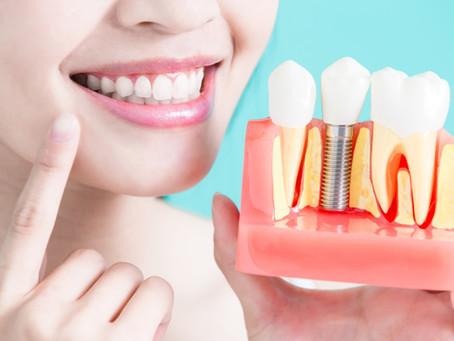 Implante Dental, o que é e como funciona?