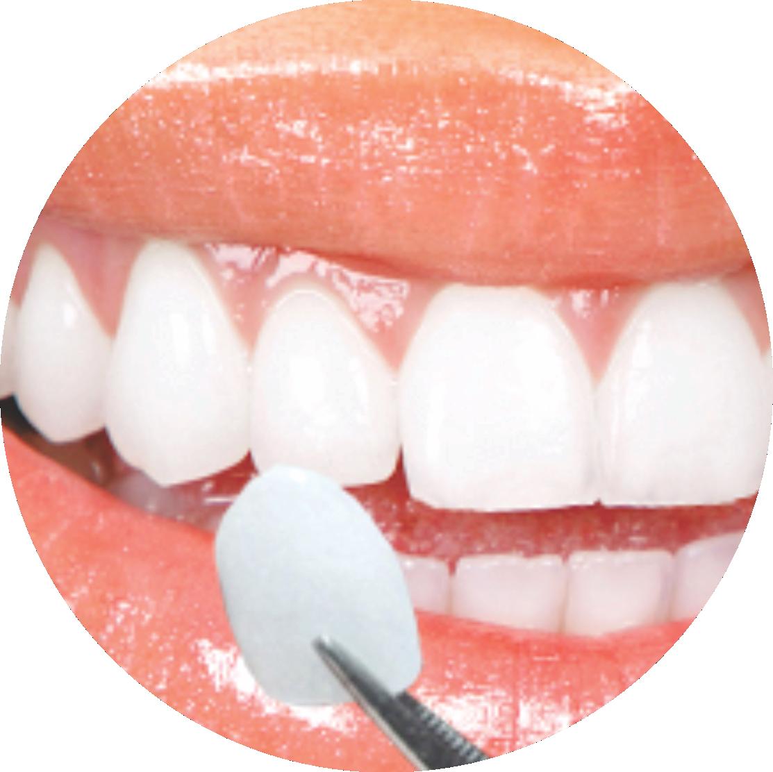 Lentes de Contato para den