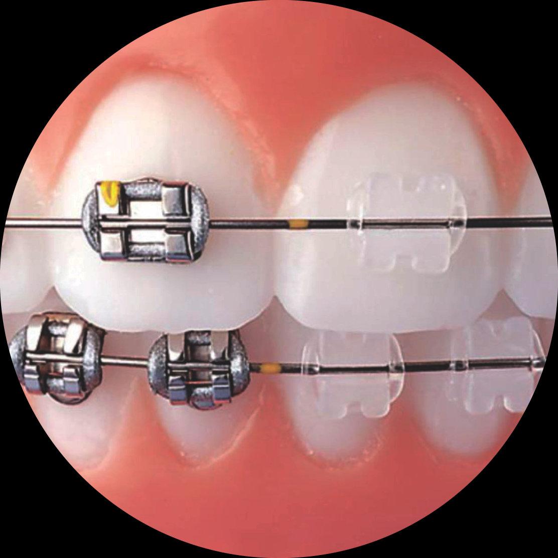 Ortodontia   Aparelho bucal