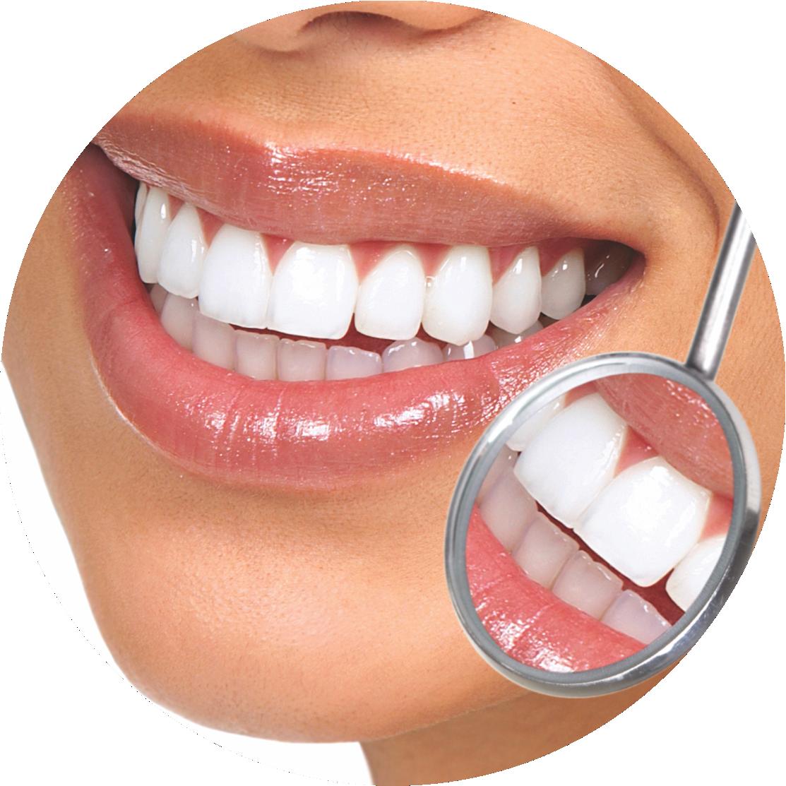 Clínica Geral   Limpeza de dentes