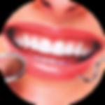 endodontia.png