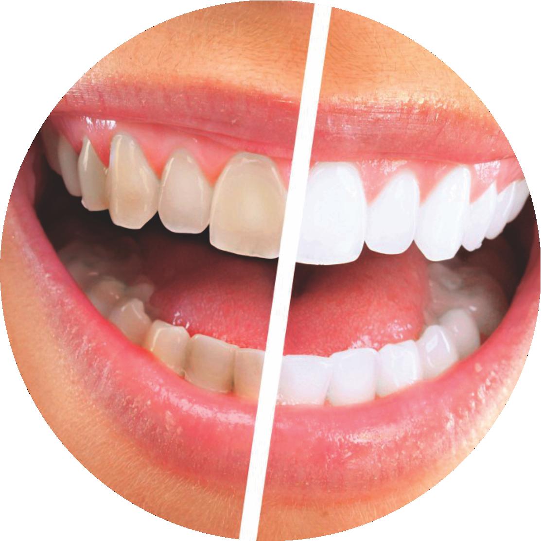 Clareamento dental   Dentes Branco