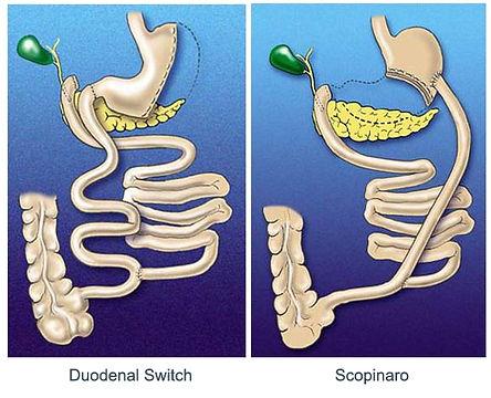 duodenal-switch-e-scopinaro.jpg