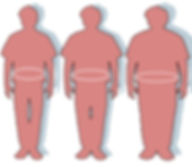 progresso-da-obesidade.jpg