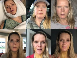 My Double Jaw Surgery: Day 7 After Surgery: