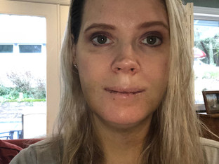 My Double Jaw Surgery: Day 4 After Surgery: