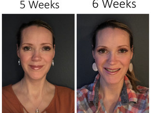 My Double Jaw Surgery:  The 5th and 6th Weeks After