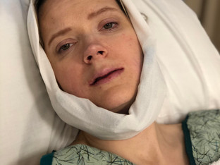 My Double Jaw Surgery:  Surgery Day