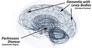 parkinson's disease photo.jpg