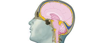 normal-pressure-hydrocephalus-teaserimag