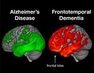 frontotemporal dementia images.jpg