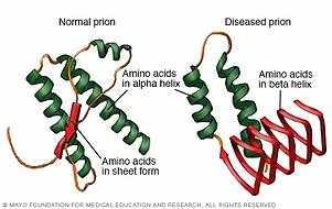 creutzfeldt-jakob disease image.webp
