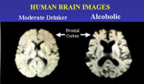 korsakoff syndrome image.jpg