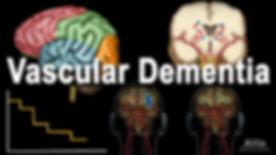 vascular dementia.jpg