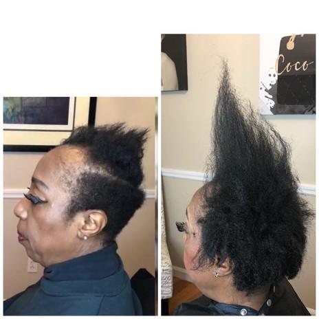 Alopecia-hairloss