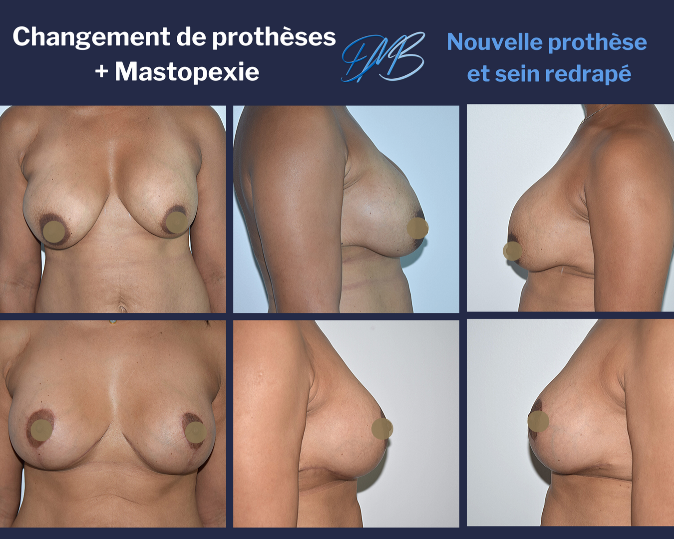Changement de prothèses mammaires + mastopexie