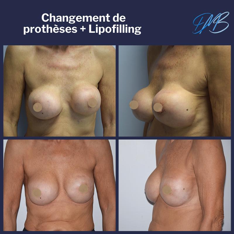 Changement de prothèses mammaires + lipofilling