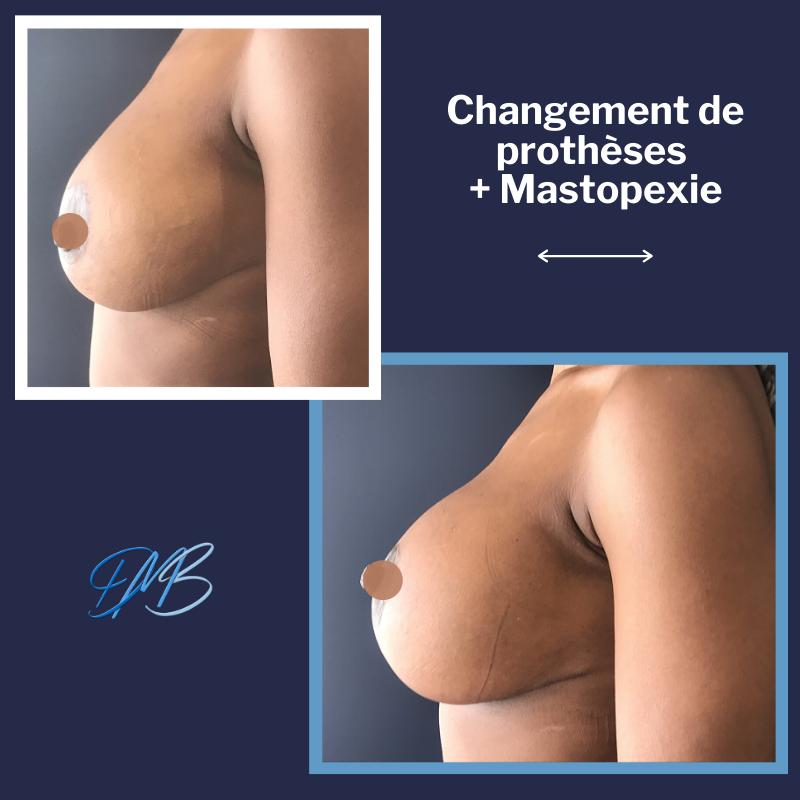 Prothèse percé : Changement de prothèses mammaires + mastopexie