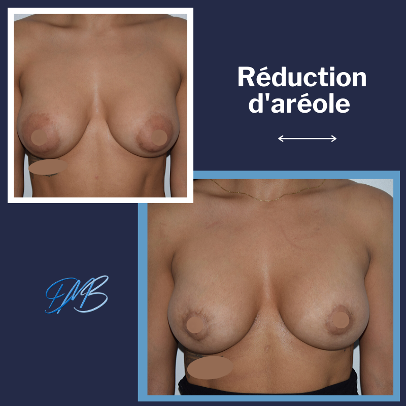 Aréole élargie chez une patiente porteuse de prothèse mammaire