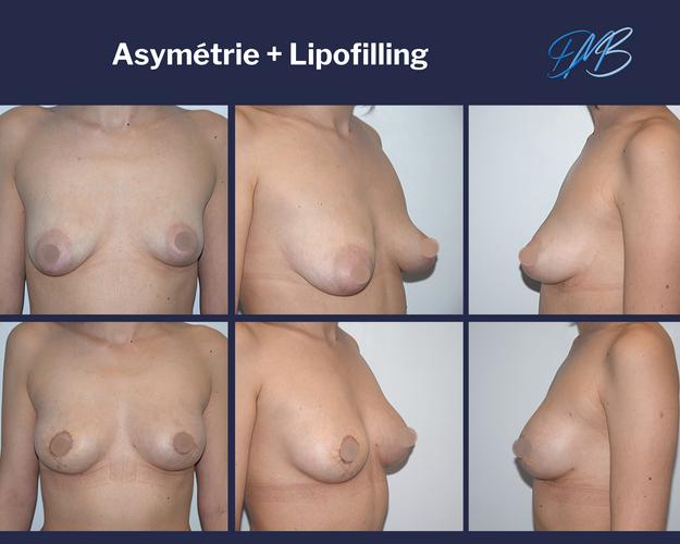 Asymétrie mammaire, sein pseudo tubéreux : symétrisation par lipofilling + mastopexie round block