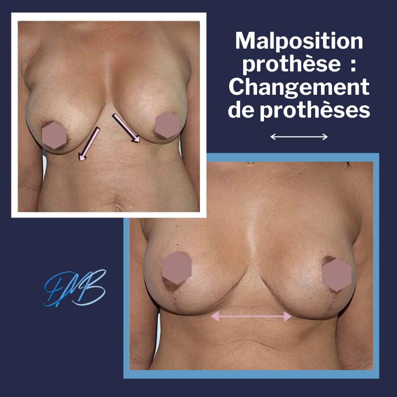 chgt pm Changement de prothèses mammaires + mastopexie