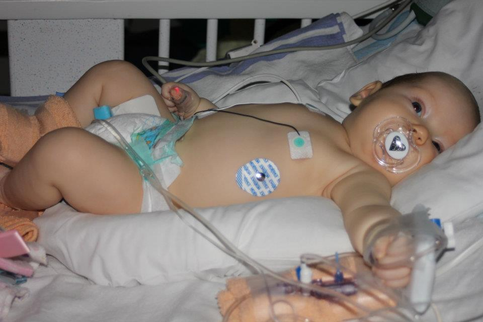 Craniosynostosis - The first evening in the hospital post-op