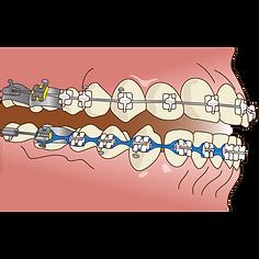 orthodontics053.png