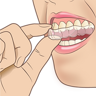 mouthpiece_orthodontic.png
