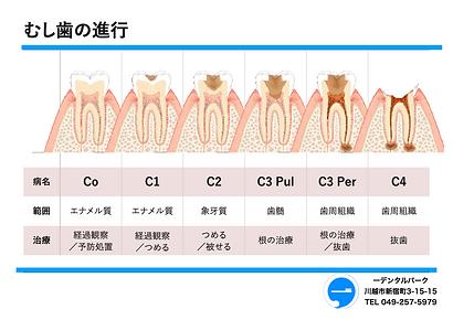 むし歯の進行状態